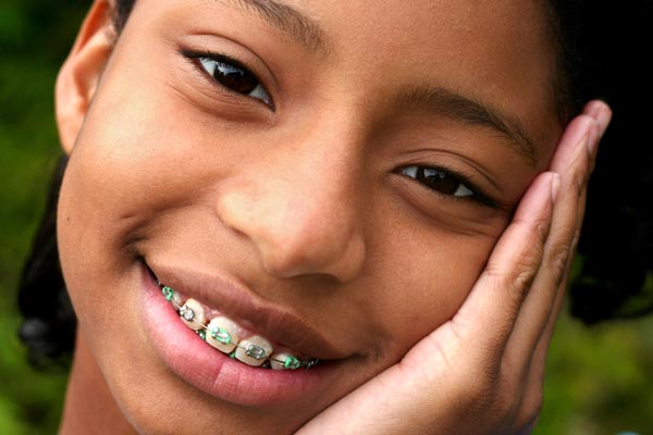 get medical card braces in illinois